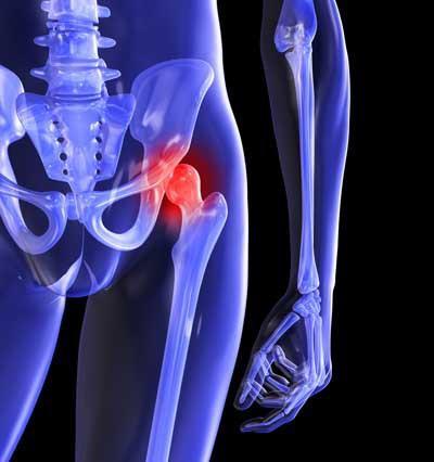 Hip Replacement Screws